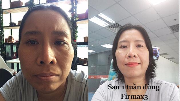Nhân chứng firmax3 - Chị Thanh