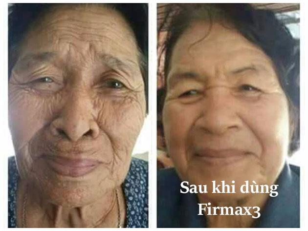 Nhân chứng firmax3 giảm nếp nhăn