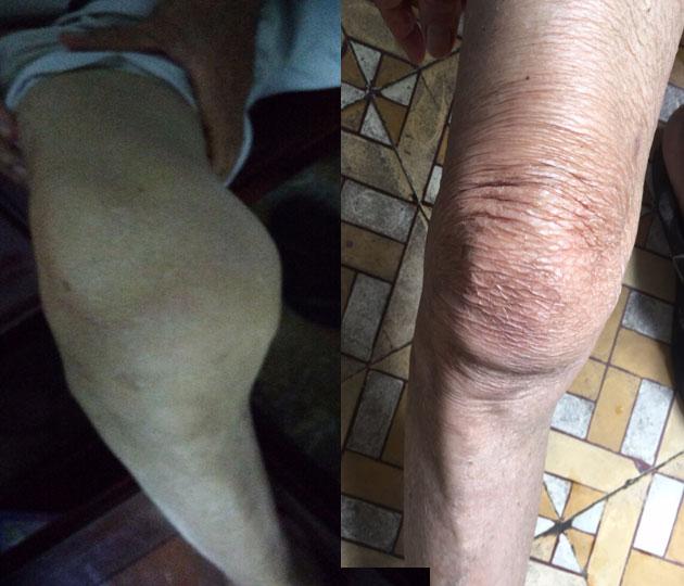 Nhân chứng firmax3 giảm viêm xương khớp